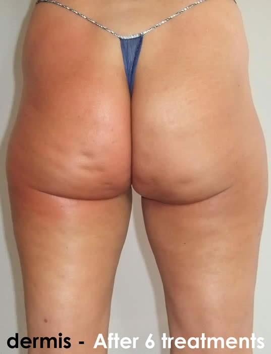 cellulitis verwijderen met laser